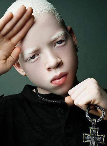 Meet Robdarius Roben X Brown People With Albinism By