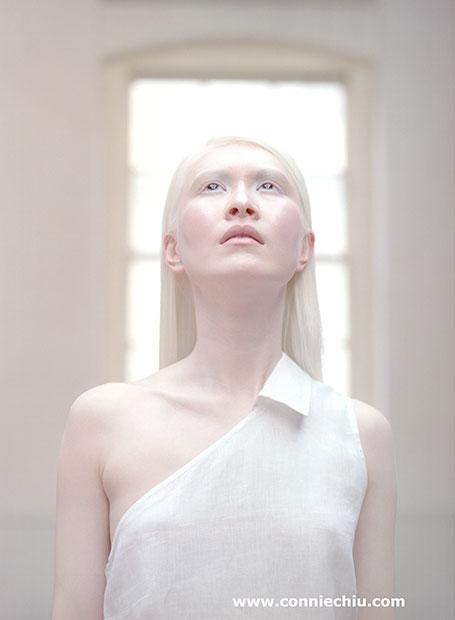 Mois de la femme : un forum citoyen pour des femmes albinos